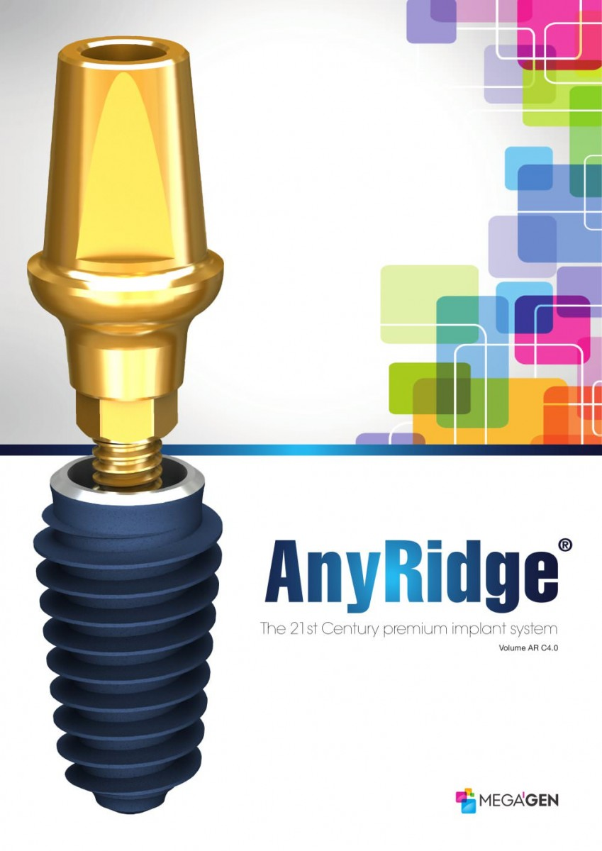 implant dentar megagen anyridge